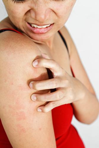 psoriaz-kak-forma-allergii