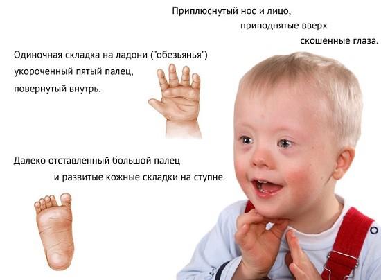 Образец характеристики ребенка дауна