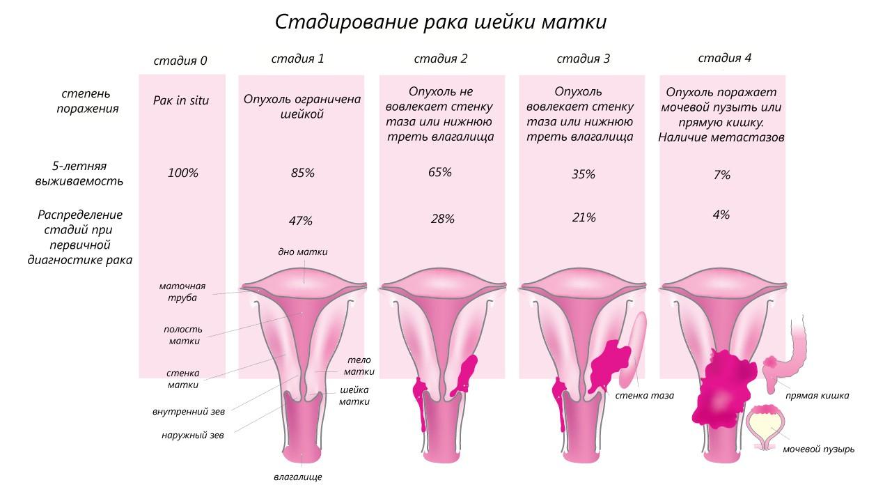 Рак шейки матки: признаки, причины и лечение