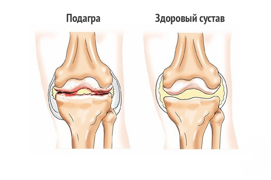 Подагра - лечение болезни