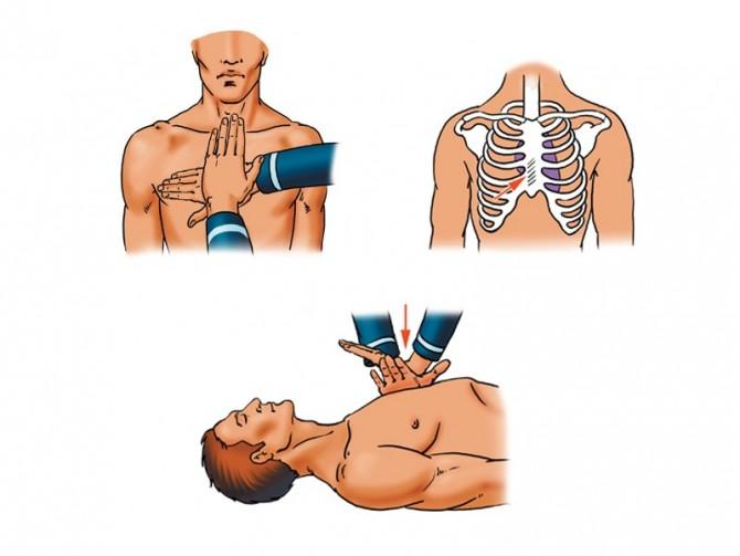 Как правильно сделать массаж сердца