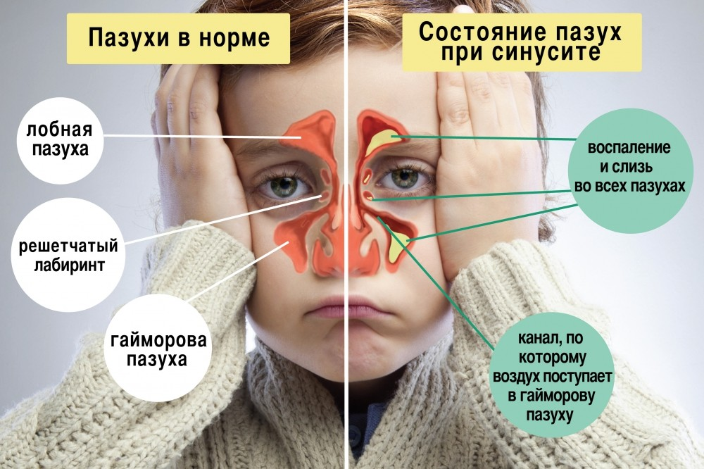 Как проявляется гайморит симптомы