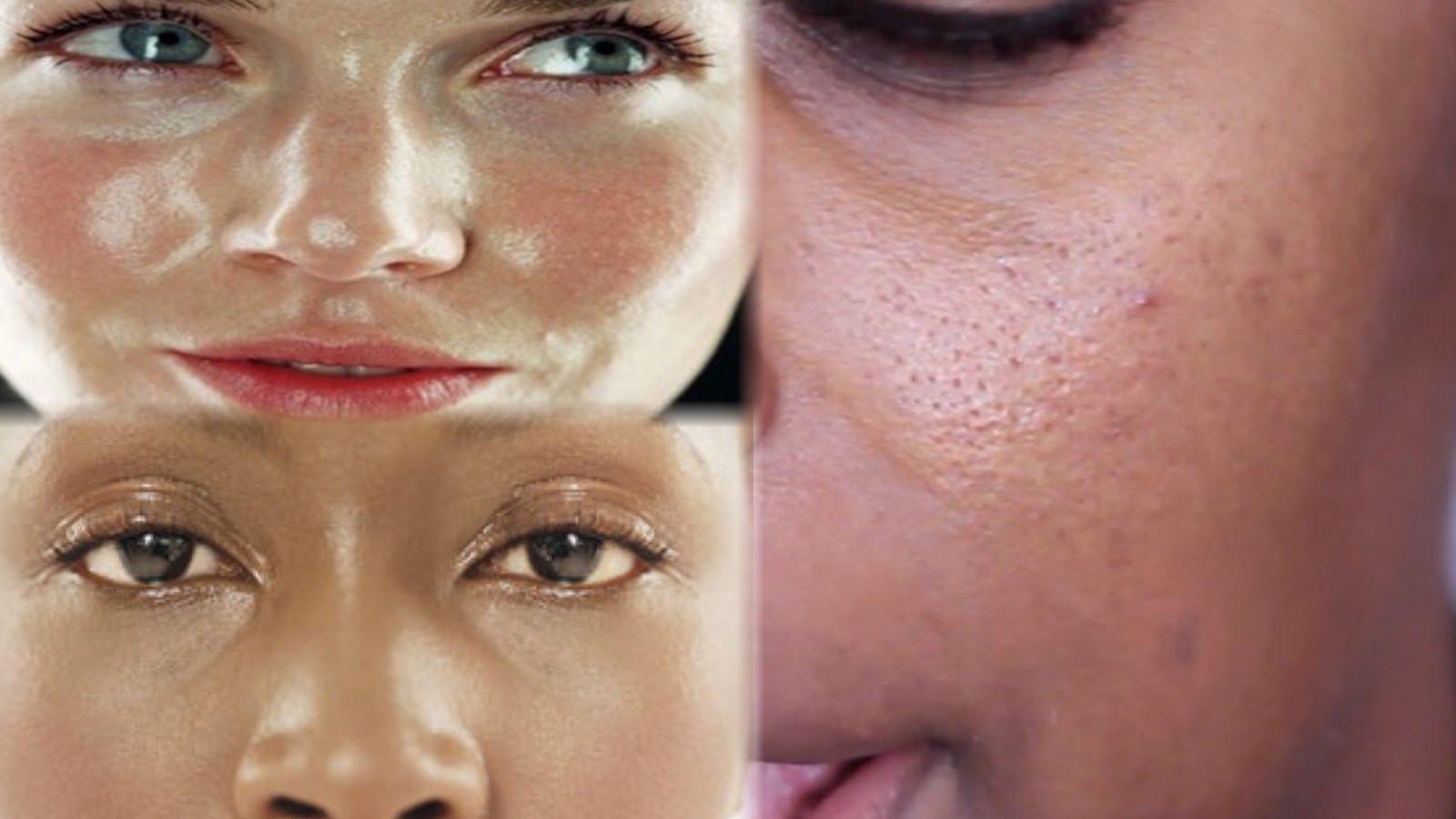 Как уменьшить жирность кожи лица