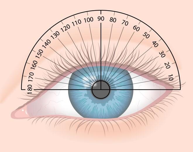 Как лечится астигматизм глаза у детей