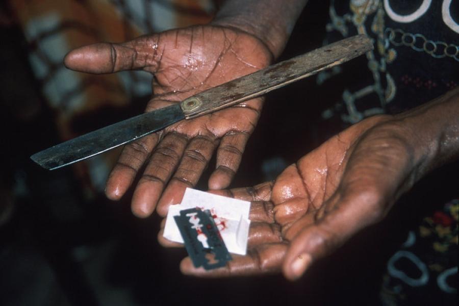 фото женские обрезание