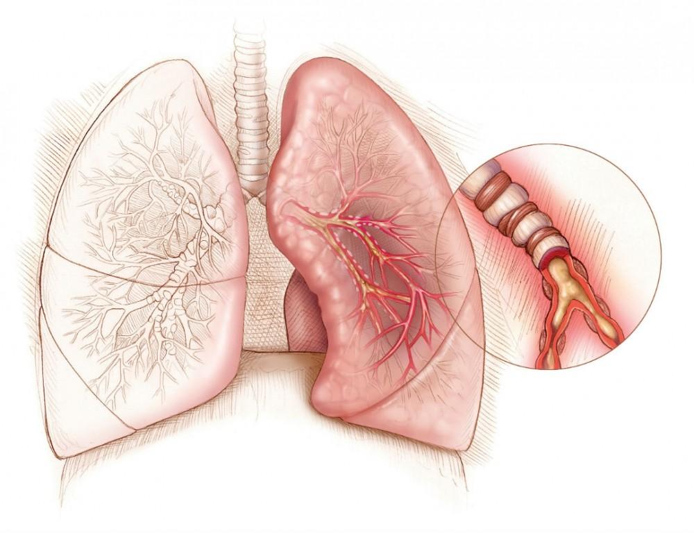 Легкие при астме