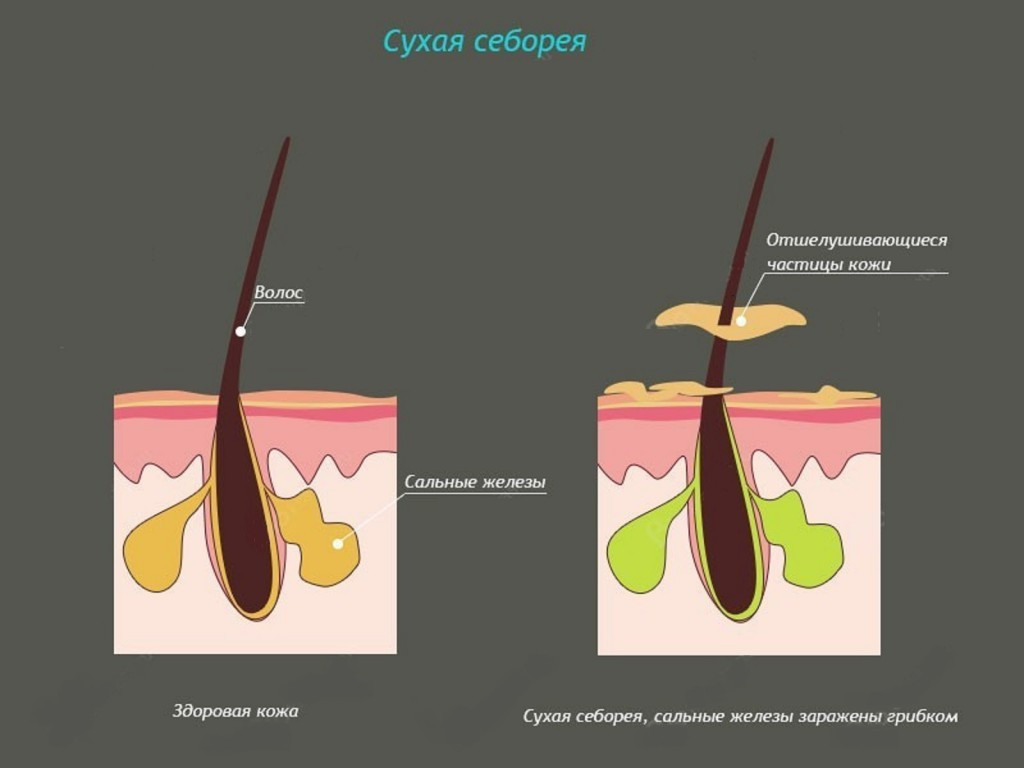 Себорея - лечение симптомы диагностика последствия