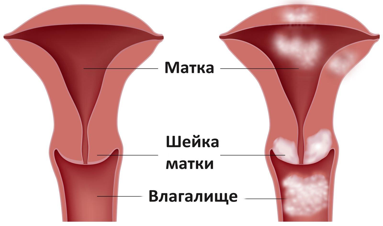 Влагалище и ее разновидности, женский клитор под микроскопом