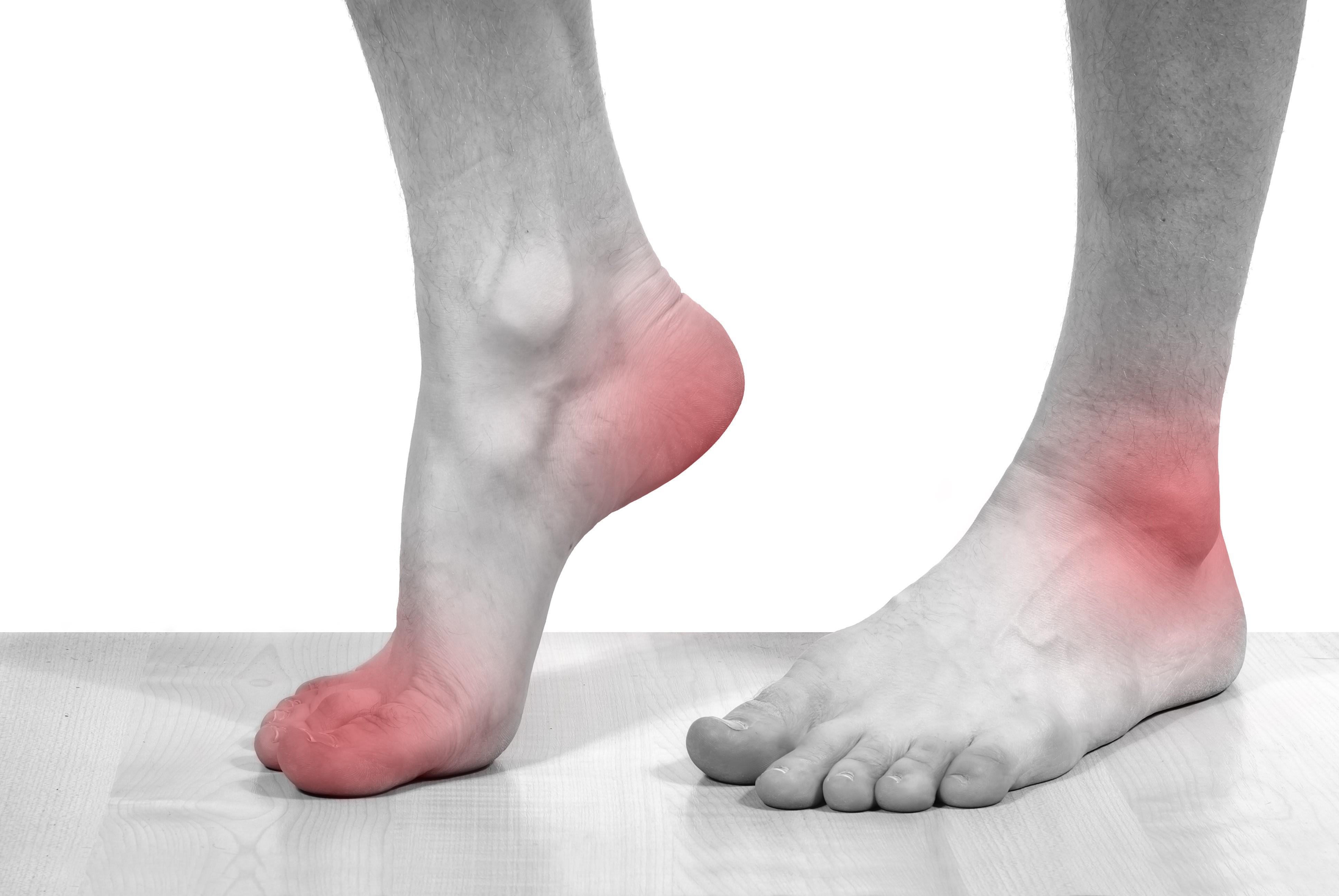 Подагра - лечение болезни. Симптомы и профилактика заболевания Подагра