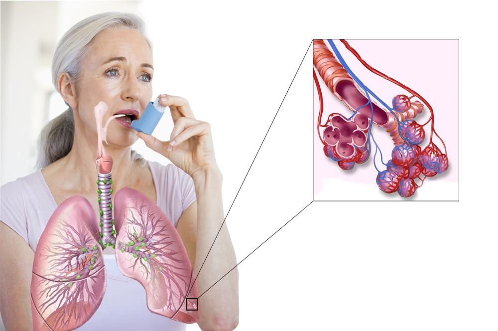 неконтролируемая бронхиальная астма симптомы