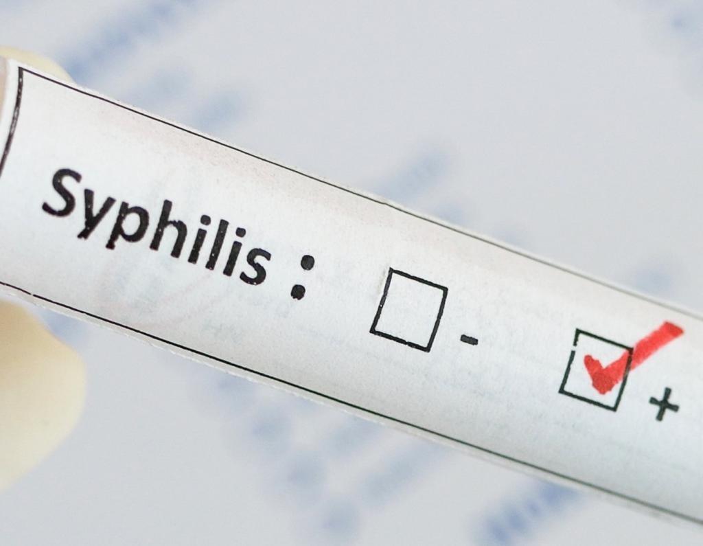 Через какое время можно заниматься сексом после лечения сифилиса