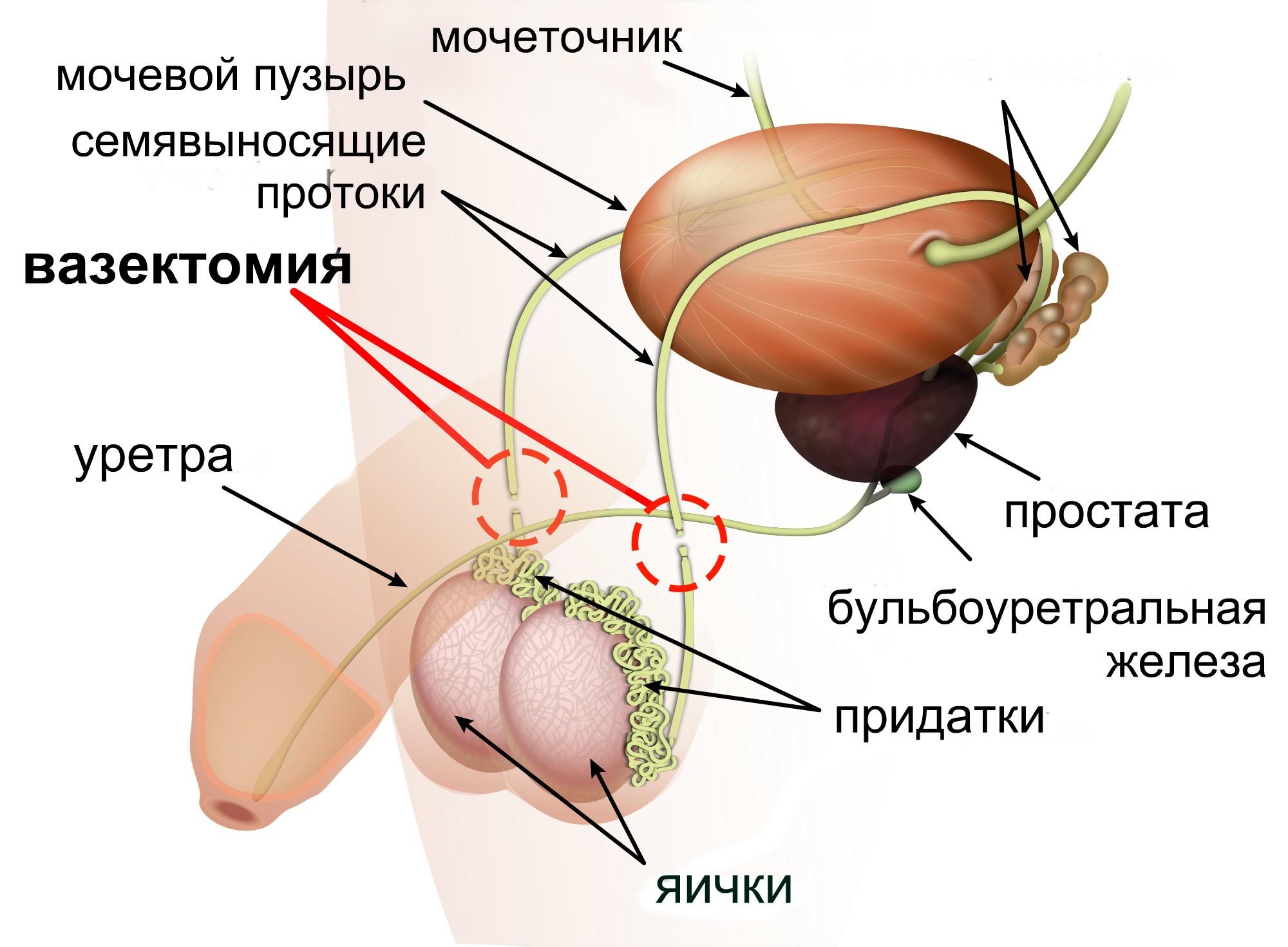 Как сделать вазэктомию