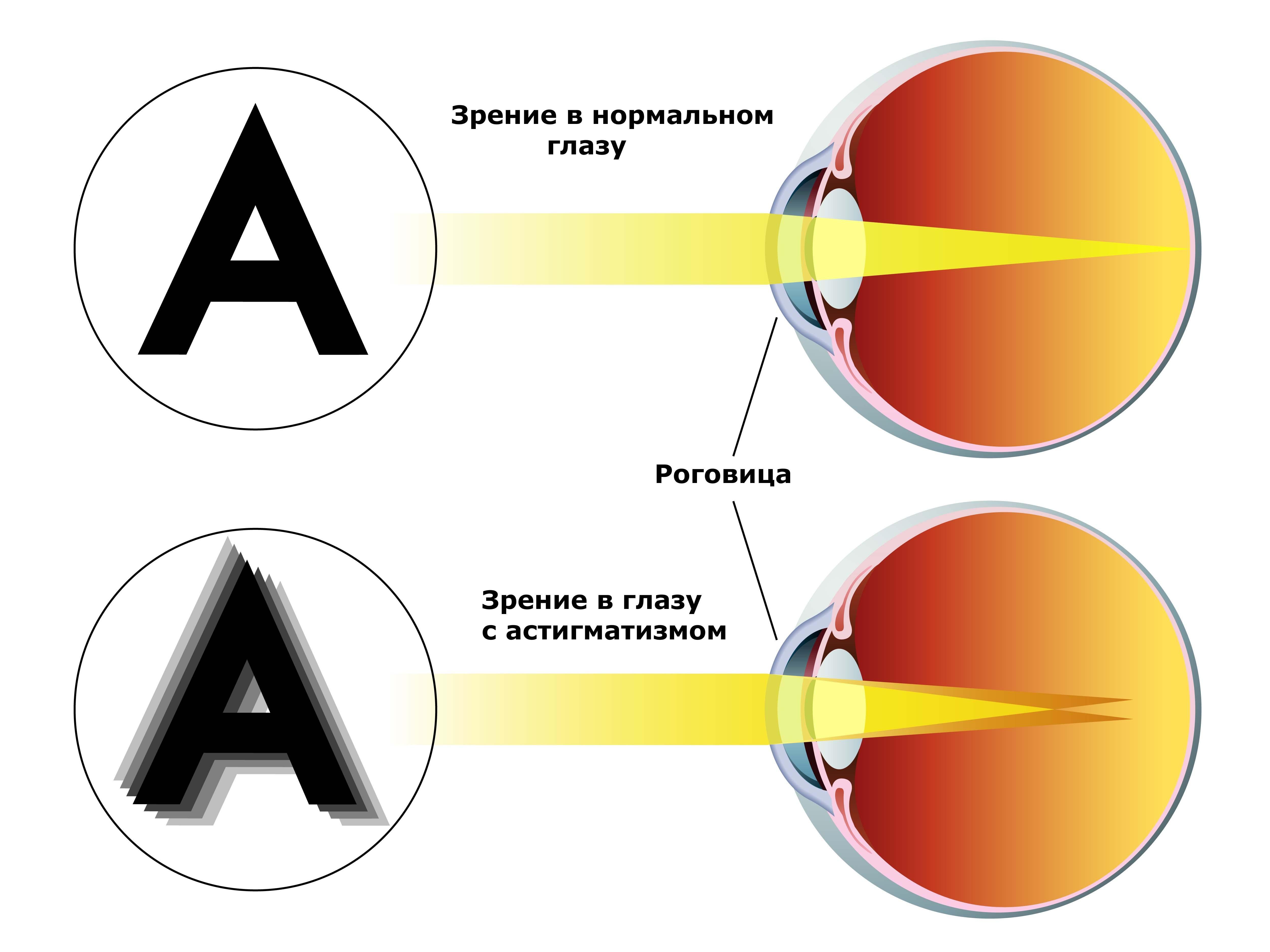 Астигматизм зрения можно ли вылечить