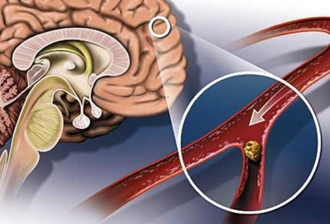Преходящее повышение артериального давления наблюдается при