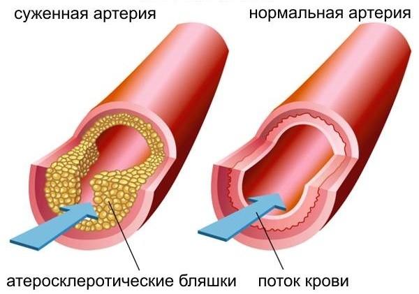 уровень холестерина в крови женщин