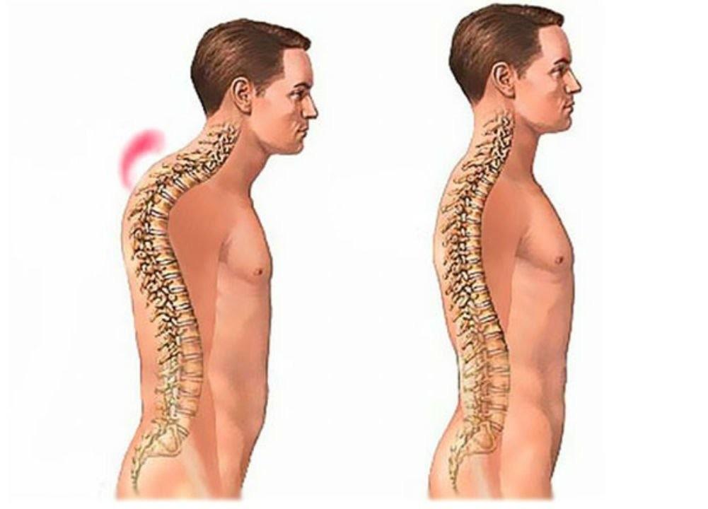 Грудной кифоз симптомы лечение