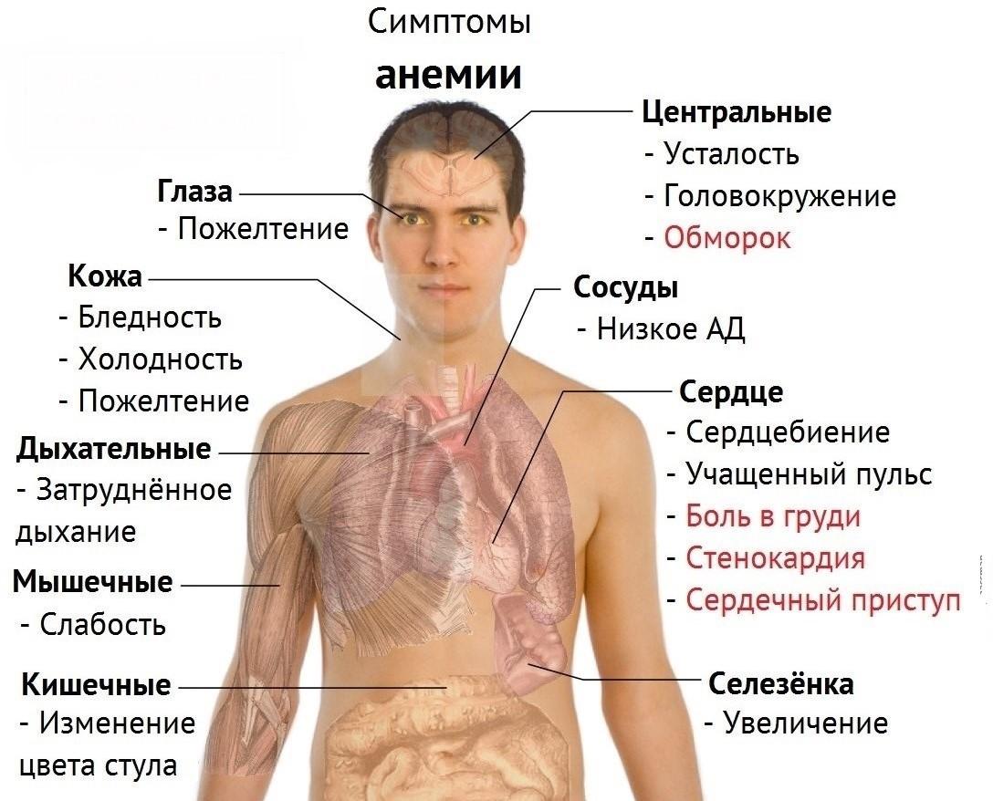 Анемия - лечение болезни. Симптомы и профилактика заболевания Анемия