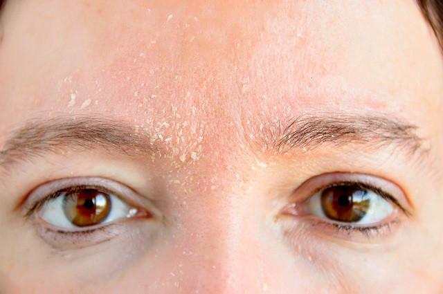 Себорейный дерматит лица