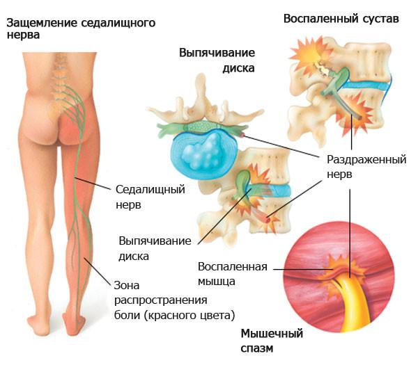 Ущемление нервов при грыже