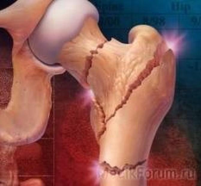 Как бобровой струей лечить колени 92