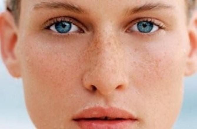 Цинковая мазь от пигментации на лице