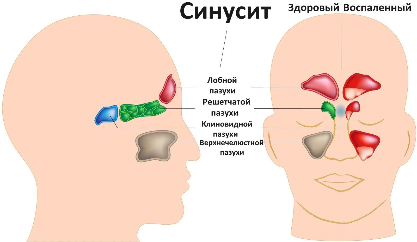 температура насморк кашель при беременности 34 недели