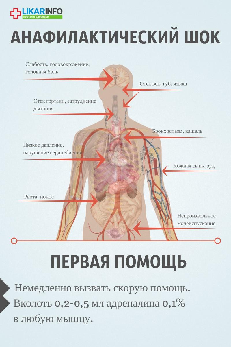аллергия и кашель с мокротой симптомы