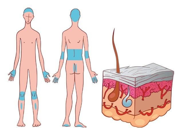 Какие особенности проявления псориаза на ногах? Фото.