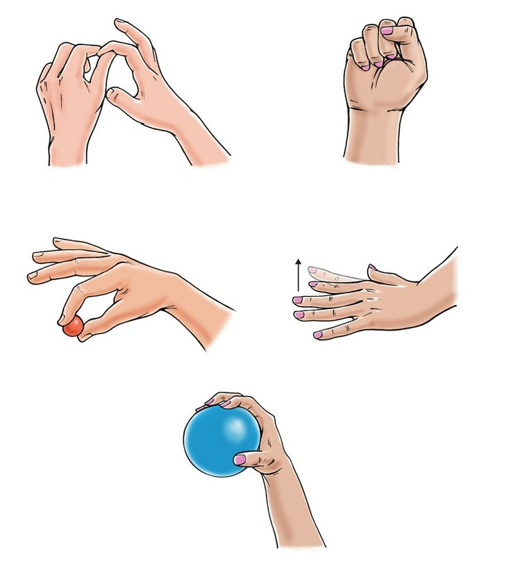 Разработка сустава пальца после перелома артороз голеностопного сустава