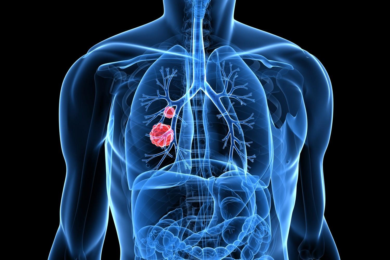 чем лечить пропавший голос при раке легких