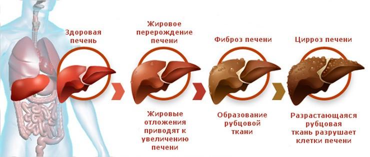 Диффузные изменение эхоструктуры печени лечение