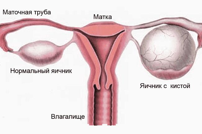 Нормальный яичник яичник с кистой