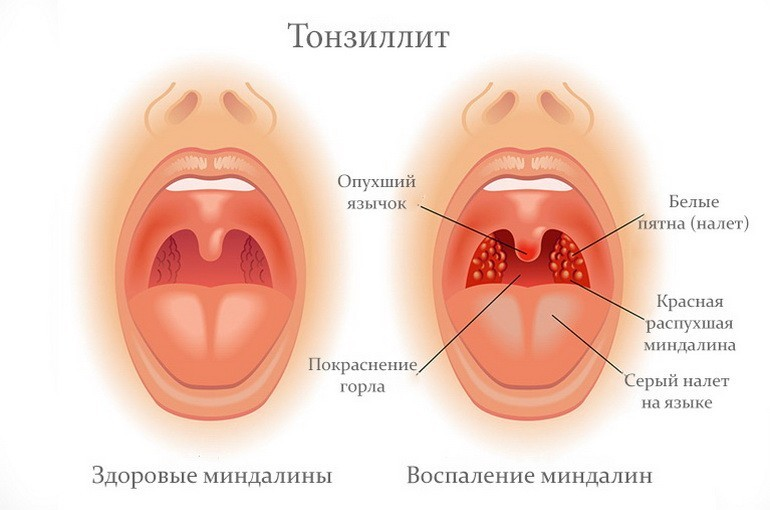 Тонзиллит - лечение болезни