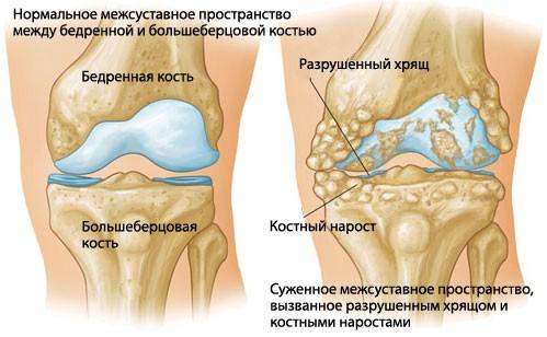 Ультразвук на коленный сустав мазь при занятии фитнесом хрустят суставы