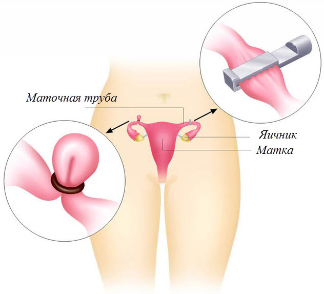 Колпачки для безопасного секса