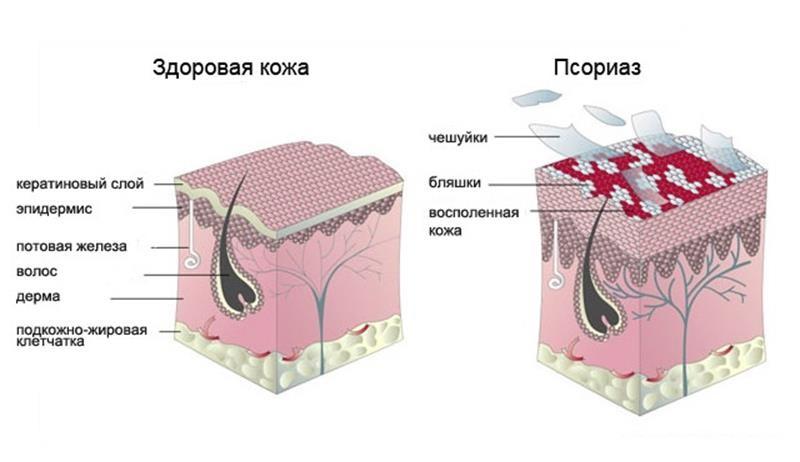 Как выглядит псориаз
