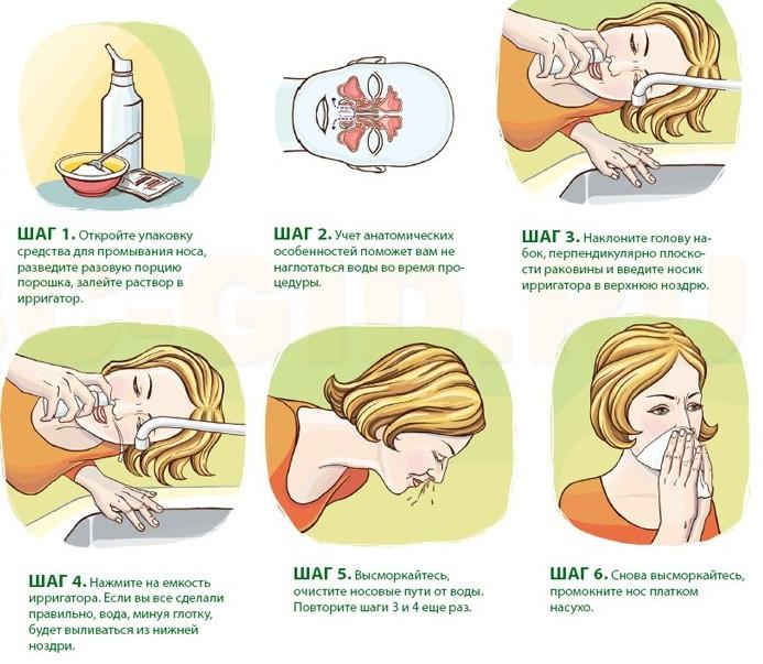 Как правильно закапывать капли в нос от насморка?