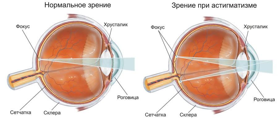 Видео упражнения для глаз при дальнозоркости