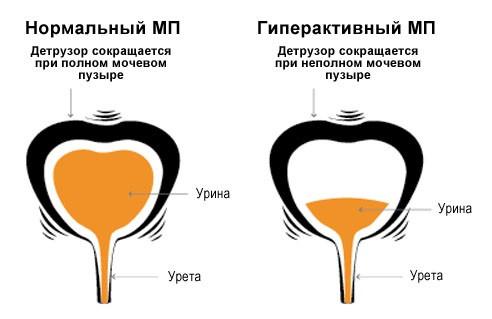 Воспаление лимфоузлов у ребенка лечение