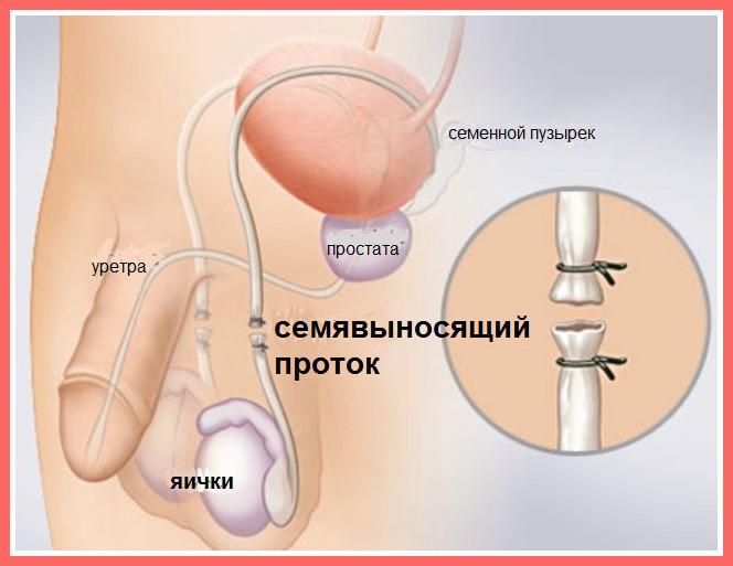 Методы контрацепции чтобы не забеременить при сексе