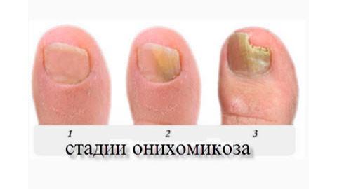 грибок ногтей фото симптомы лечение