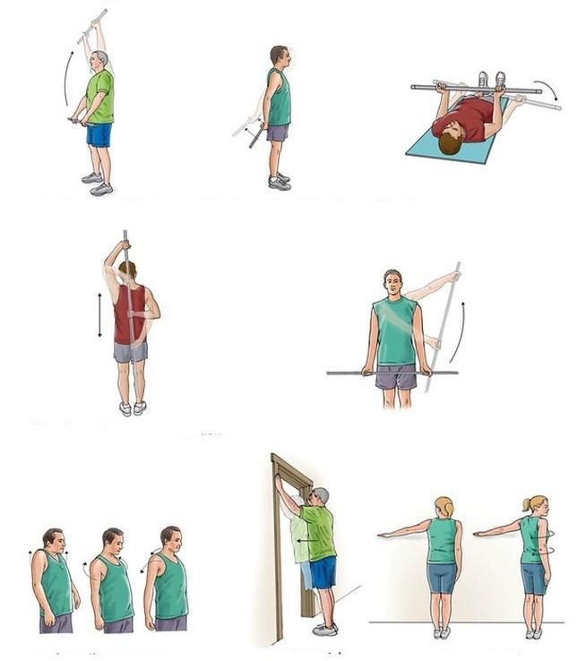 Как разработать плечевой сустав после перелома замена голеностопного сустава в россии цены