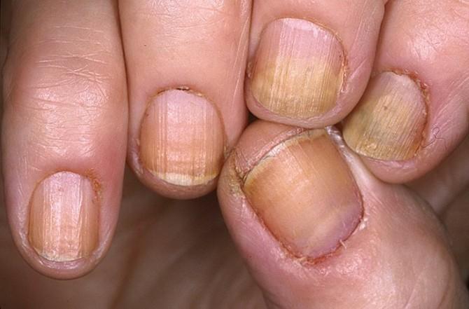 Лечение грибка стопы и ногтей уксусной эссенцией