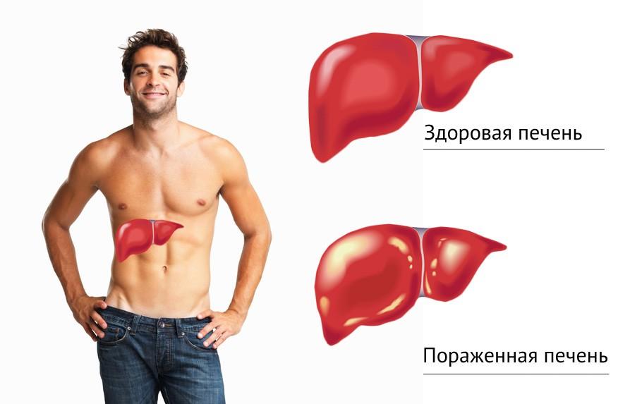 показаны препараты с антиандрогенным эффектом