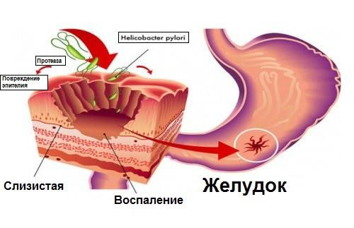 диета при пищевой аллергии у взрослых меню