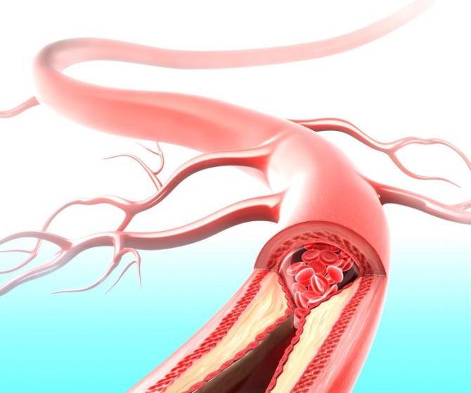 препараты при повышенном холестерине у женщин