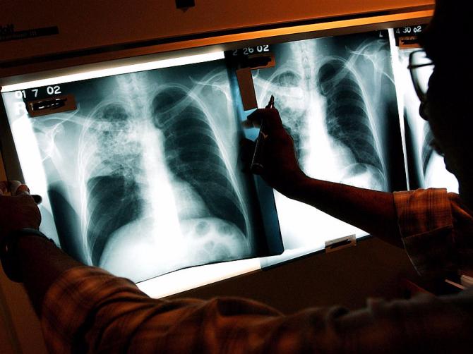 Распространившийся впостсоветских странах туберкулез является самым опасным