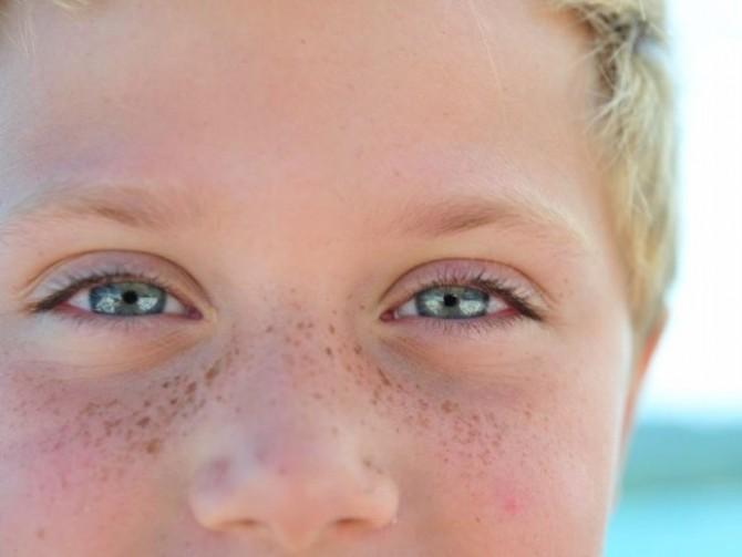 Пигментное пятно на лице чешутся