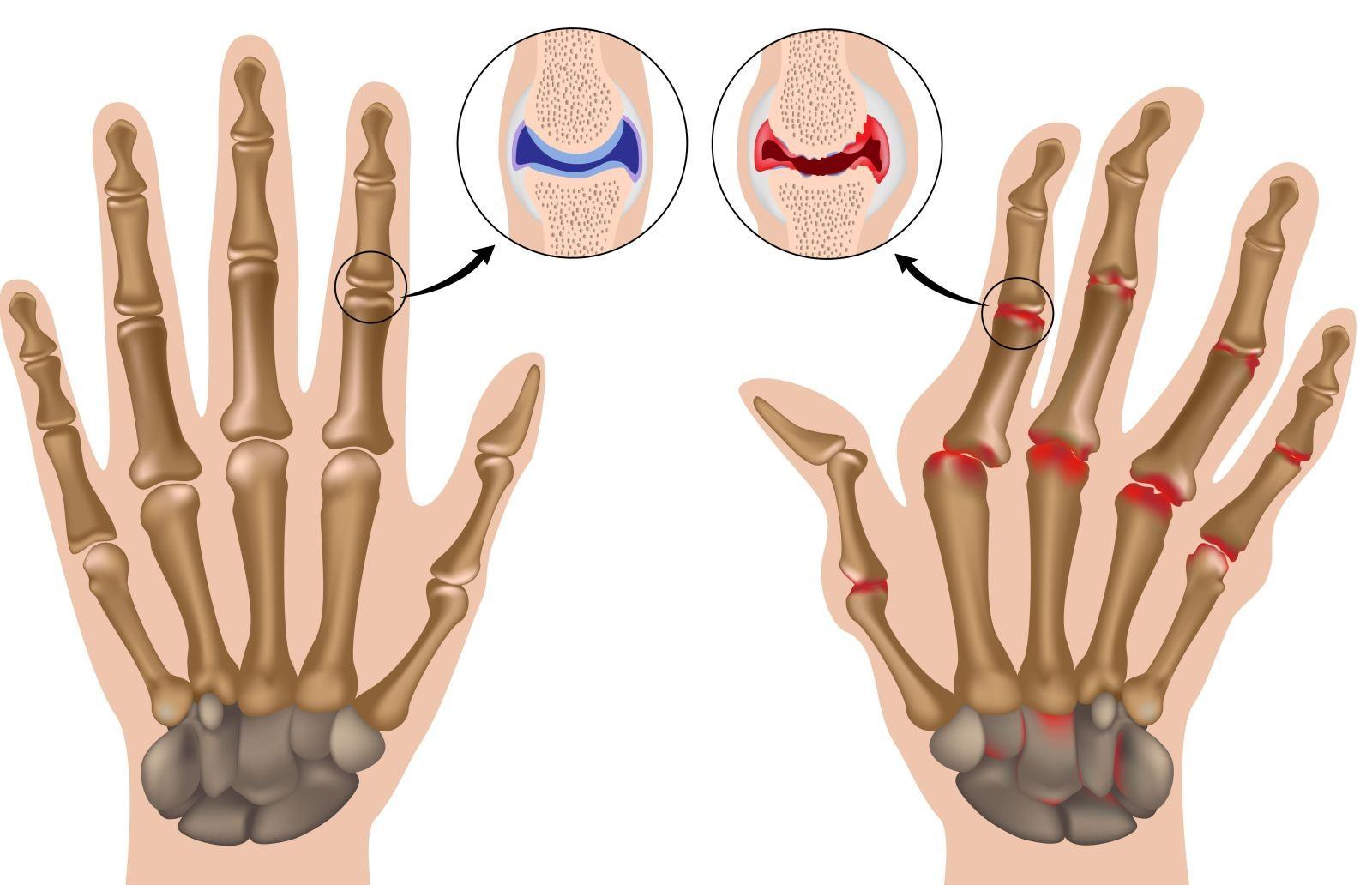 артрит симптомы болезни Реактивный артрит: лечение, симптомы и причины