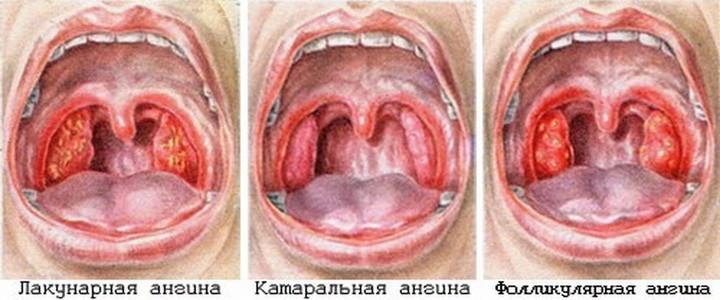 неприятный запах изо рта у беременных женщин